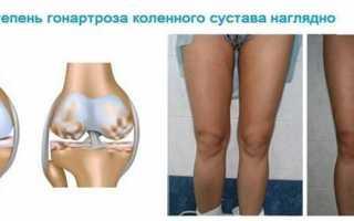 Важные нюансы: чем отличается артроз от гонартроза коленных суставов?