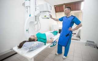Симптомы и лечение обострения остеохондроза шейного отдела