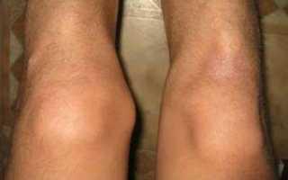 Что такое остеофиты и шипы коленного сустава и как их удалить?