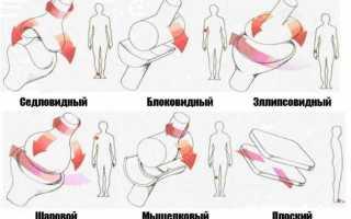 Примеры цилиндрических суставов. классификация суставов и их общая характеристика