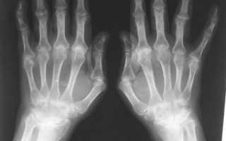Как лечить ревматоидный артрит кистей рук в домашних условиях