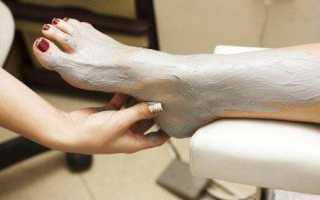 Лечение артроза стопы