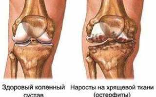 Остеоартроз плечевого сустава 2 степени упражнения для лечения
