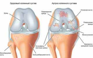 Баня для суставов: полезные свойства, правила проведения процедуры