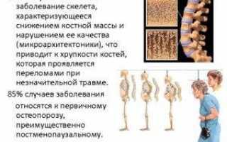 Околосуставной остеопороз: этиопатогенез, симптомы, разновидности и методы терапевтической коррекции