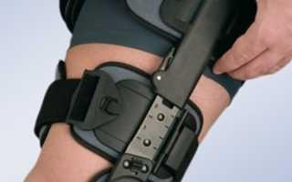 Ортез на коленный сустав: виды, показания, противопоказания