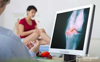 Инфекционный артрит (септический артрит)