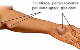 Отекают руки. причина отеков, диагностика, лечение отеков рук
