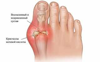 Причины отёков пальцев ног