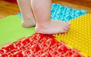 Вальгусная деформация стоп у детей: причины и симптомы, профессиональное и домашнее лечение, профилактика