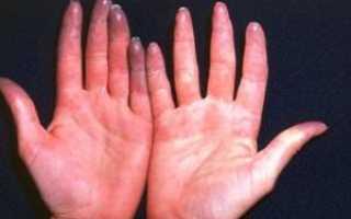 Онемение в левой руке и боль в сердце