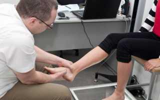Ортопедические стельки для взрослых. как подобрать