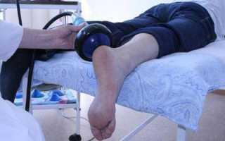 Плоскостопие. причины, симптомы, степени, диагностика плоскостопия. плоскостопие у детей