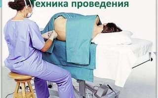 Болит позвоночник после пункции