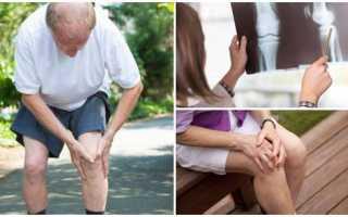 Какую группу инвалидности дают при гонартрозе коленного сустава 3 степени: тонкости получения статуса