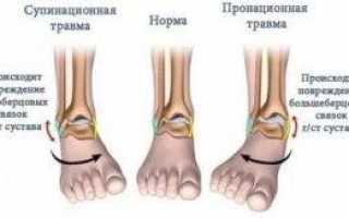 Почему при ходьбе ноги подворачиваются