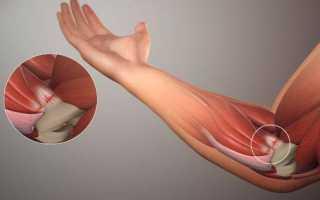Признаки локтевого эпикондилита — симптомы, диагностика, лечение в домашних условиях и подбор ортеза