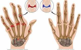 Артрит пальцев рук: лечение народными средствами в домашних условиях
