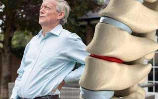 Какие степени поясничного остеохондроза выделяют?