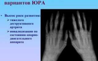От чего зависит прогноз при ревматоидном артрите