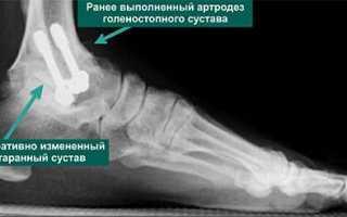 Народные средства лечения артроза пяточной кости