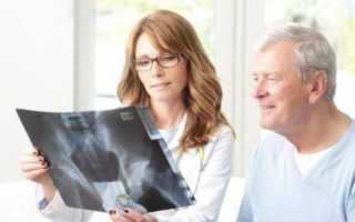 Эндопротезирование суставов виды показания и противопоказания