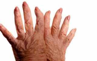 Симптомы и методы лечения артрита пальцев рук и ног