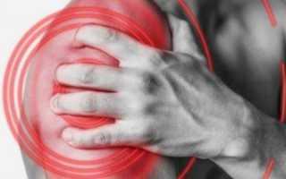 Как лечить плечелопаточный периартрит