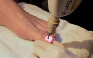 Дикое мясо на пальце ноги фото лечение