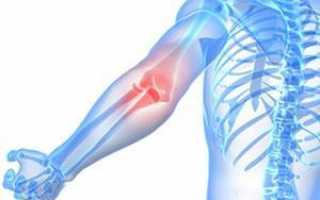 Помогает ли терафлекс при шейном остеохондрозе