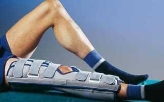 Разрыв мениска коленного сустава лечение народными средствами в домашних условиях