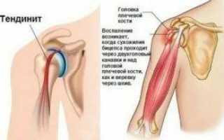 Теносиновит плечевого сустава что это такое и как его лечить