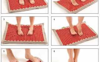 Чем чревато плоскостопие, на что оно влияет у мужчин и женщин и причины его развития