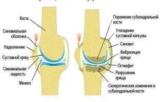 Целительная сила массажа суставов: детальный разбор «плюсов» и «минусов» мануальной методики