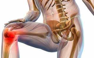 Крепитация коленного сустава
