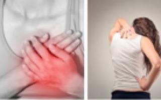 Торакалгия на фоне остеохондроза грудного отдела позвоночника