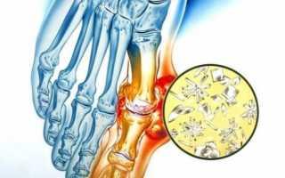 Причины и лечение воспаления сустава большого пальца ноги