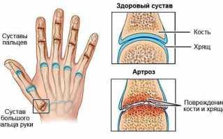 Болит и щелкает большой палец на руке лечение