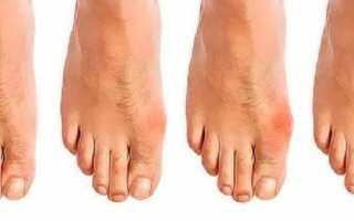 Расчет активности ревматоидного артрита