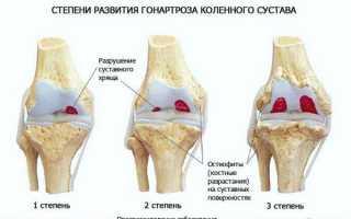 Артроз коленного сустава или гонартроз