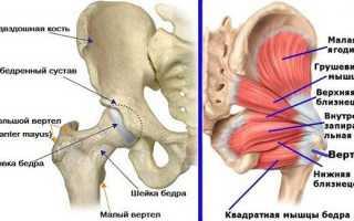 Трохантерит тазобедренного сустава лечение симптомы прогноз