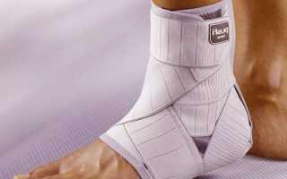 Как выполняется реабилитация после двухлодыжечного перелома стопы с подвывихом