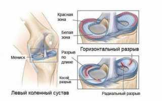 Восстановление после артроскопии коленного сустава мениска