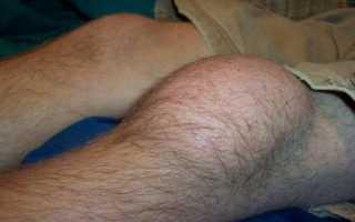 Почему колени красные