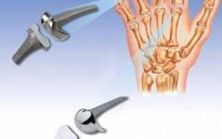 Эндопротезирование мелких суставов