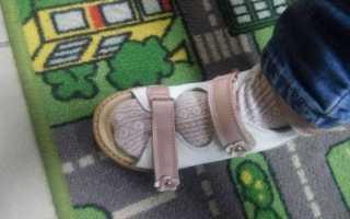 Назначение ортопедической обуви