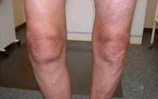 Тактика лечения контрактуры коленного сустава, почему возникает, симптомы