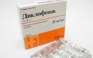 Как лечить остеохондроз в домашних условиях народными средствами