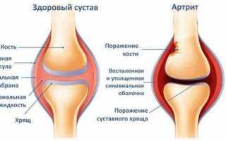 Опухла нога в районе стопы: причины и лечение