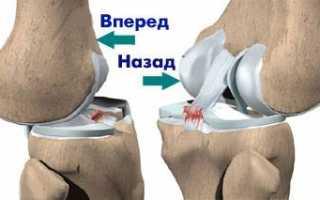 Растяжение связок коленного сустава симптомы и лечение